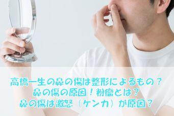 高橋一生の鼻の傷は粉瘤の手術が原因?整形疑惑も?