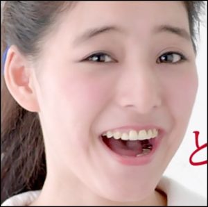 新木優子 歯 銀歯